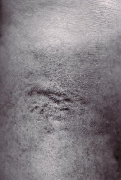 huid-v2
